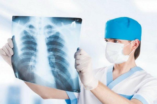 туберкульоз легень, Ніжинський район