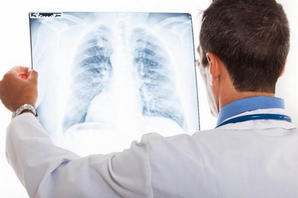 Туберкульоз, Ніжинщина